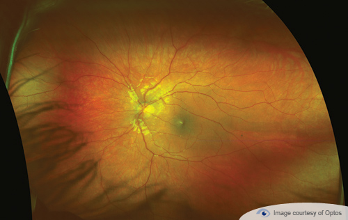 A retina close up